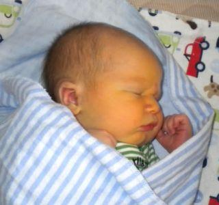 Желтуха у новорожденных. Причины возникновения. Желтуха у новорожденных – способы лечения. Гемолитическая болезнь новорожденных