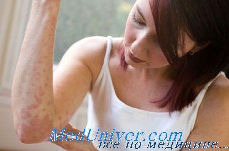 Oprema i učinkovitost u alergijskih bolesti desensebilizatsii