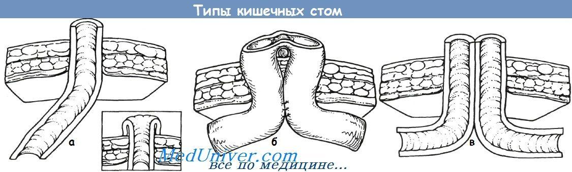 Tipuri de ostomy la nou-născuți și examinarea acestora