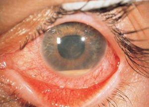 токсоплазмоза retinohorioidit