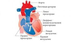 Транспозиция магистральных артерий у детей: лечение, причины, симптомы