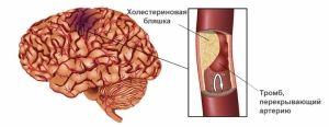 Atac ischemic tranzitor: simptome, tratament, consecințe