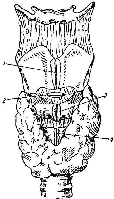 thyrochondrotomy
