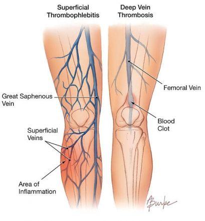 Tromboflebita a membrelor inferioare, vene, tratament, simptomele