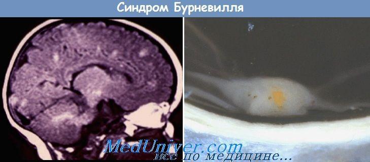 sindromul Bourneville