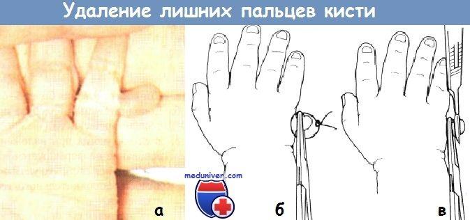 Vyjmutí navíc prsty indikace, kontraindikace, technika