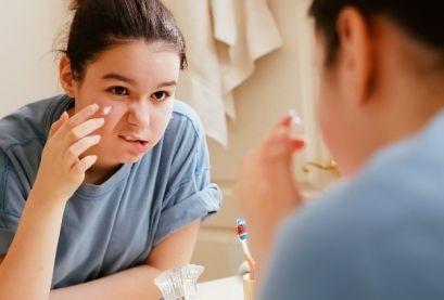 Угревая сыпь (акне) у детей, причины, лечение, симптомы