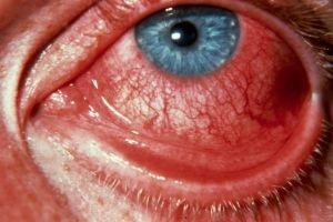 Вирусна конјунктивитис: третман, симптомите, причините, симптомите