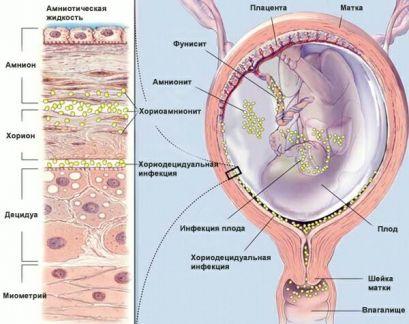 интраутерина инфекција