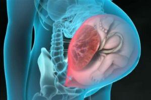 Врастание предлежащей плаценты