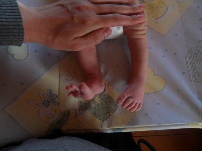 Врожденная косолапость у детей