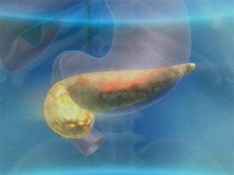 To vše rakoviny slinivky břišní (hlava, ocas, tělo, krk) a zánět slinivky břišní, fotografii, video, co je to?