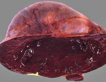 Cele mai multe chisturi endometrioid macropreparations ciocolata yaichnika-