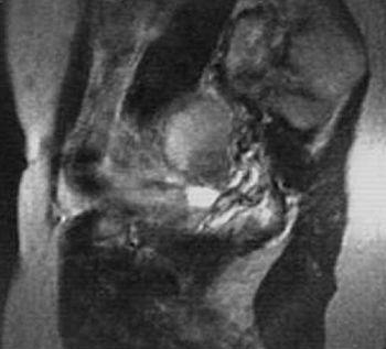 YAMT: secțiuni sagitale pe dreapta: chistului volumul endometriodnyh al ovarul drept, care dă un semnal eterogen