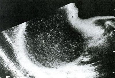 Un chist mare pe ultrasonogramme splinei.