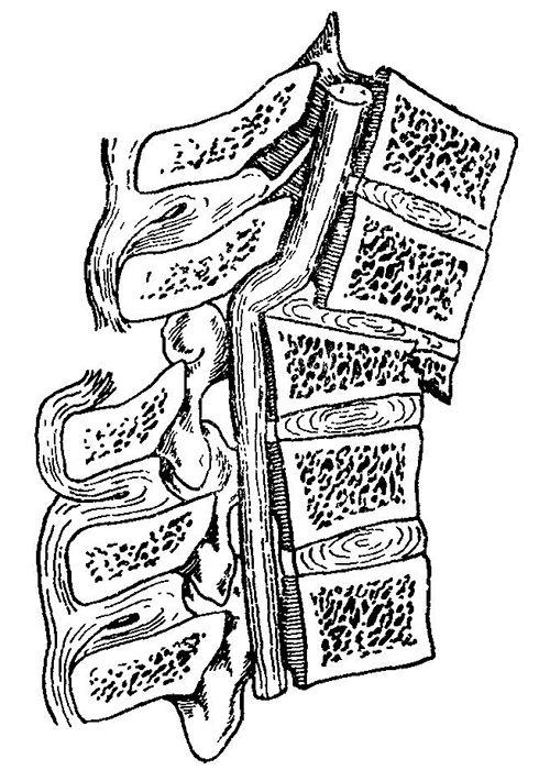 Inflexiunea a maduvei spinarii in fracturi vertebrale.